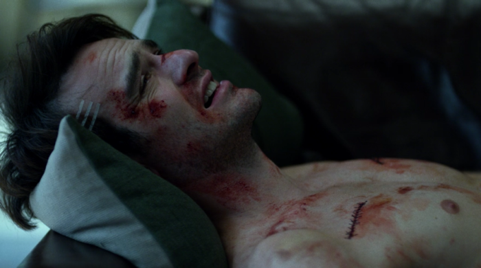 Matt, badly injured, wakes up on his couch, as seen in episode ten of Marvel's Daredevil on Netflix